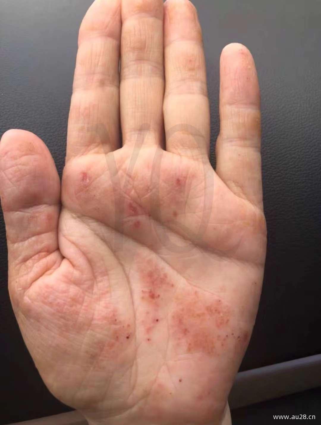朋友用羽齐抑菌膏的湿疹反馈